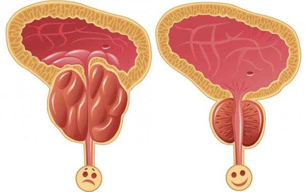 Prostalgene közvetlen hatása a prosztata